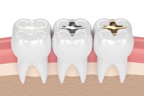 Современное пломбирование зубов для придания эстетики вашей улыбке