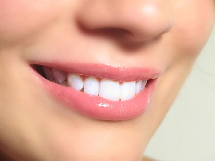 Как добиться безупречной улыбки