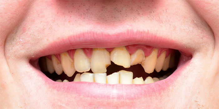 Отсутствие зубов: физиологические и психологические проблемы